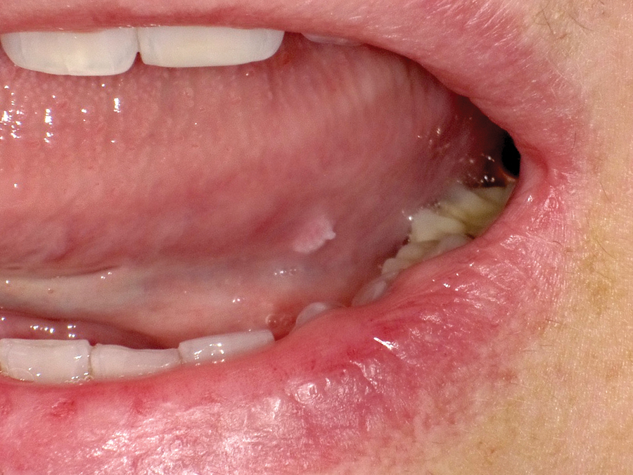 papillomas on tongue)