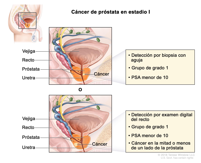 cancer de prostata etapas