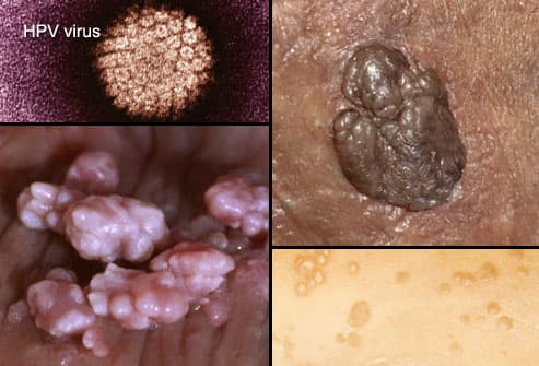 is hpv and herpes the same virus)