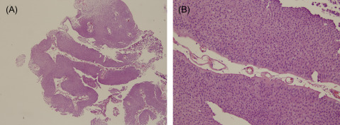 define papillary urothelial)