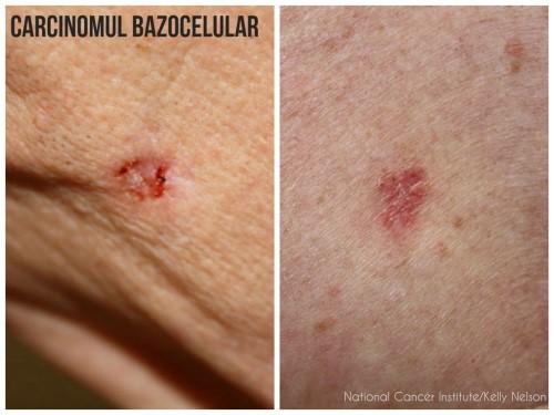 cancerul la piele simptome