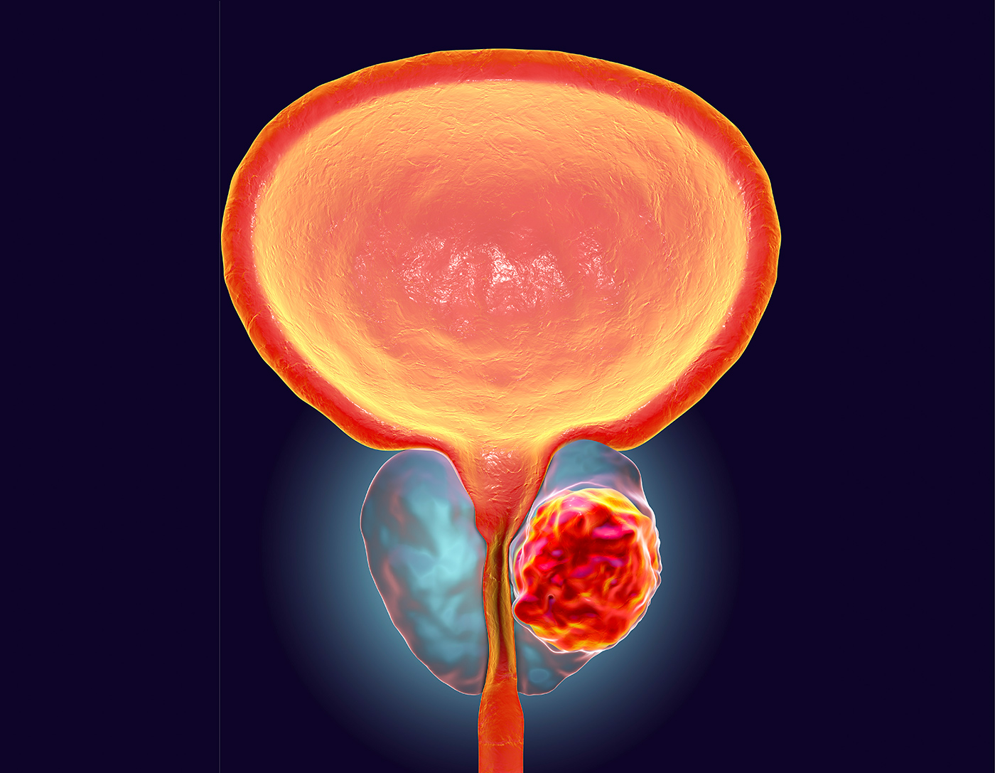 aggressive cancer in prostate
