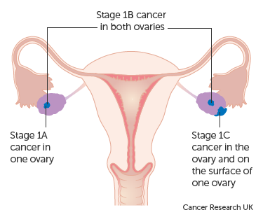 cancer ovarian depistare