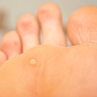 wart with foot