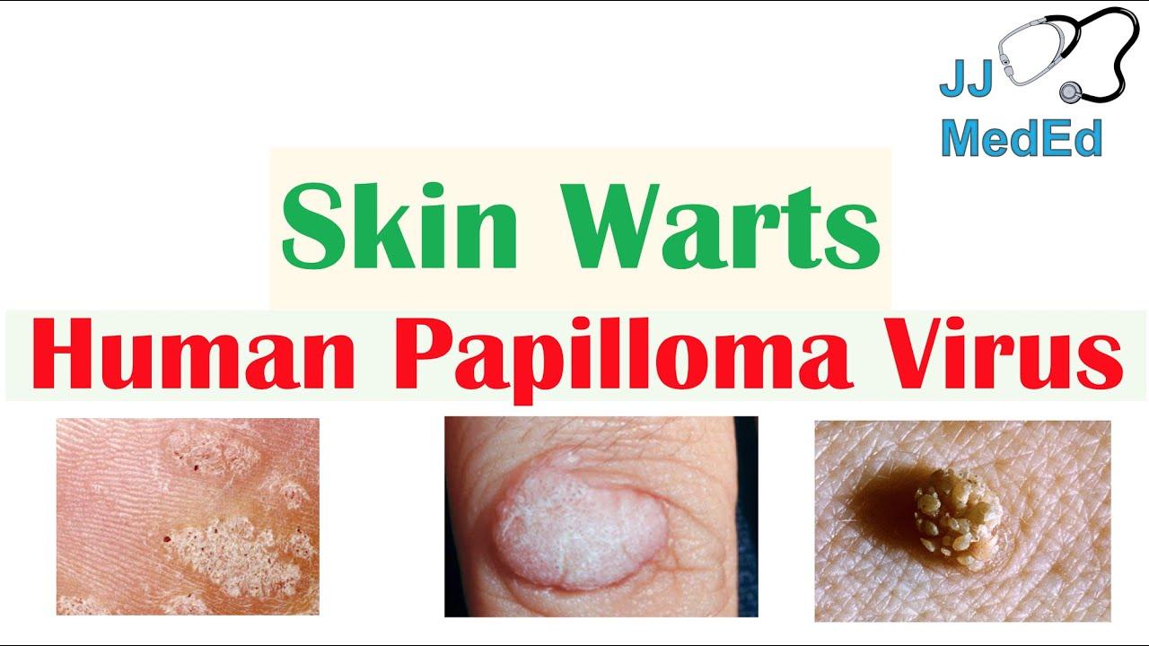 Skin papilloma treatment