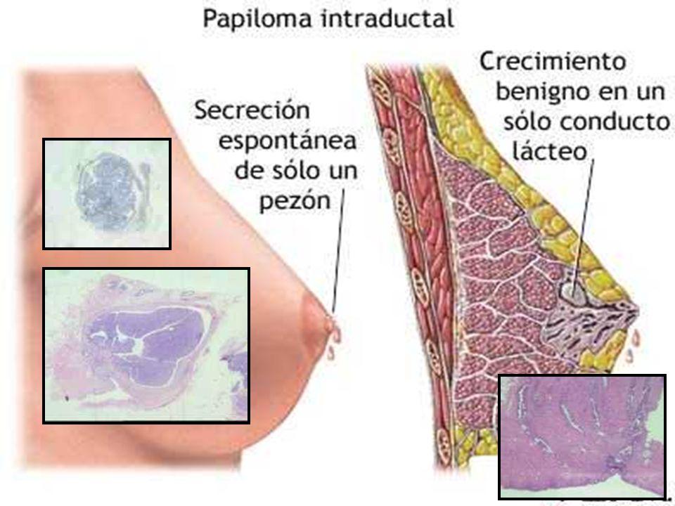 papiloma intraductal com atipia)