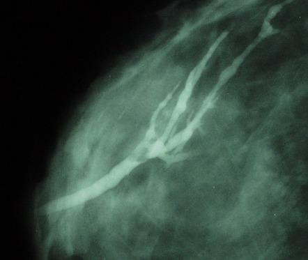 intraductal papilloma hereditary