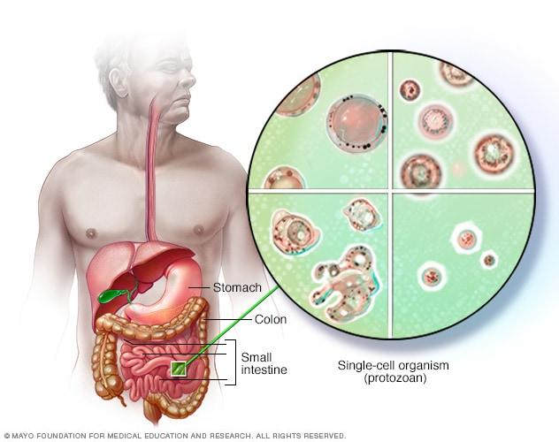 Boala giardiozei este tipică, Schistosomiasis and hiv