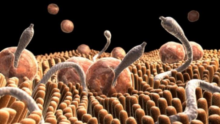 tratament intestinal pentru bacterii și paraziți detoxifiere naturală de colon