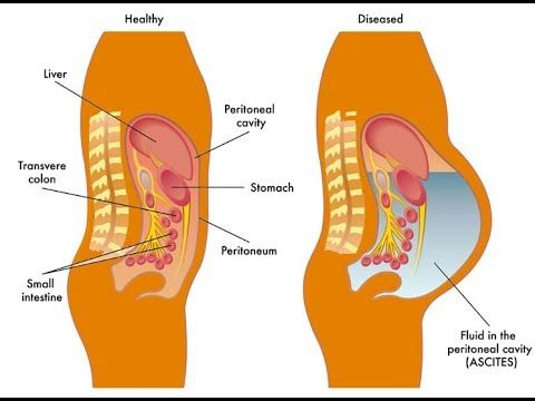 peritoneal cancer natural treatment