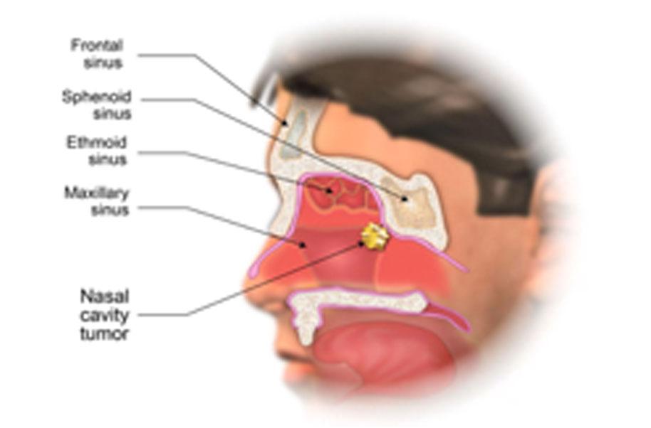 warts nasal cavity