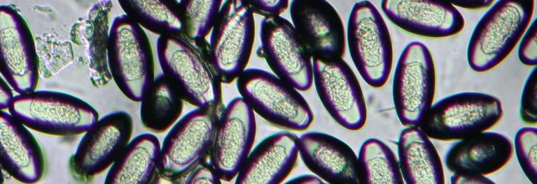 bacteria oxiuros)