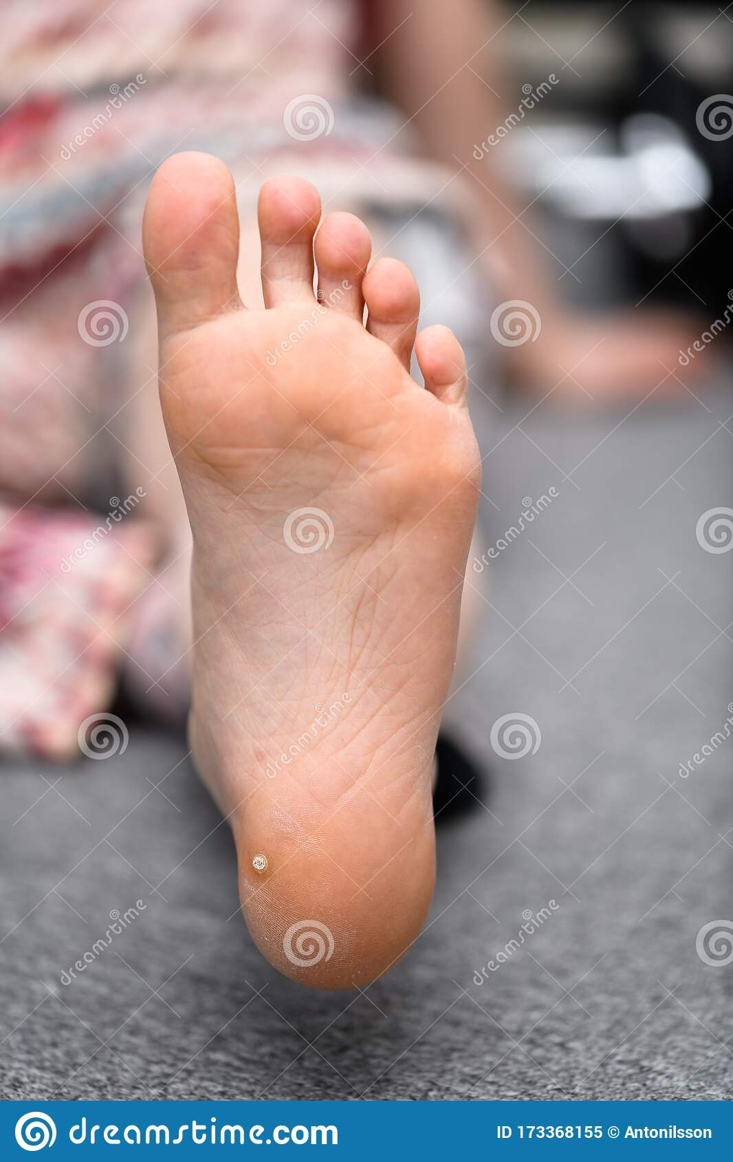 wart toddler foot