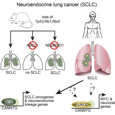 neuroendocrine cancer lung small cell)