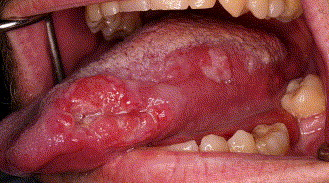 squamous papilloma not hpv