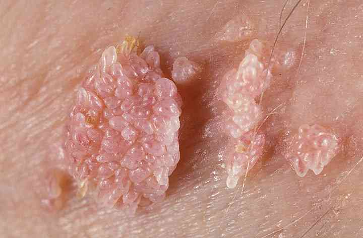 hpv virus kod muskaraca)