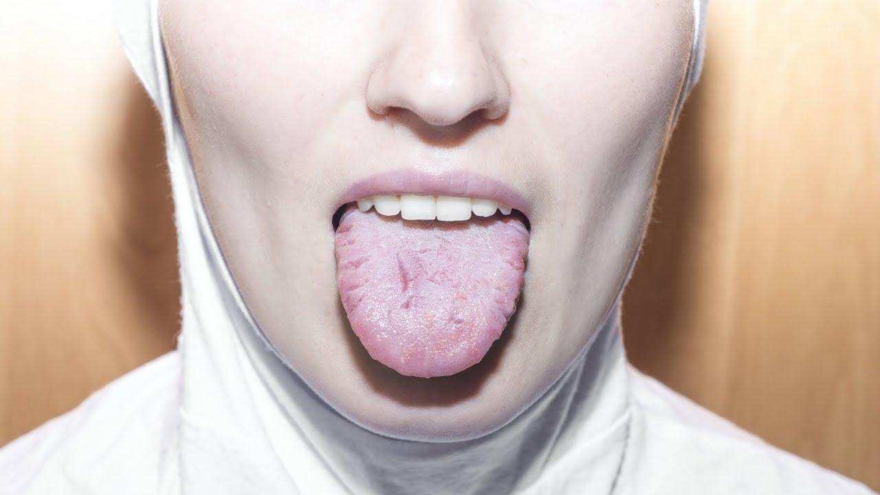 Cancer bucal. Simptome si factori de risc predispozanti