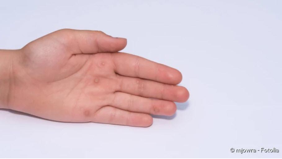 hpv warzen finger treatment for papillomas