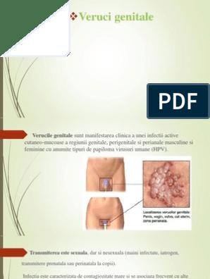 coagularea preparării verucilor genitale