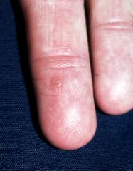 hpv virus finger warts