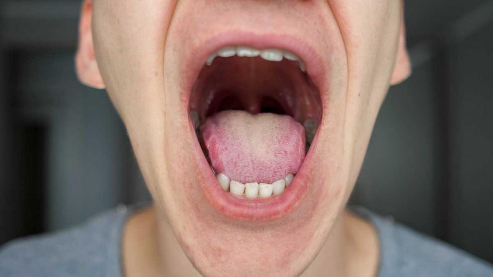 cancer de bucal sintomas