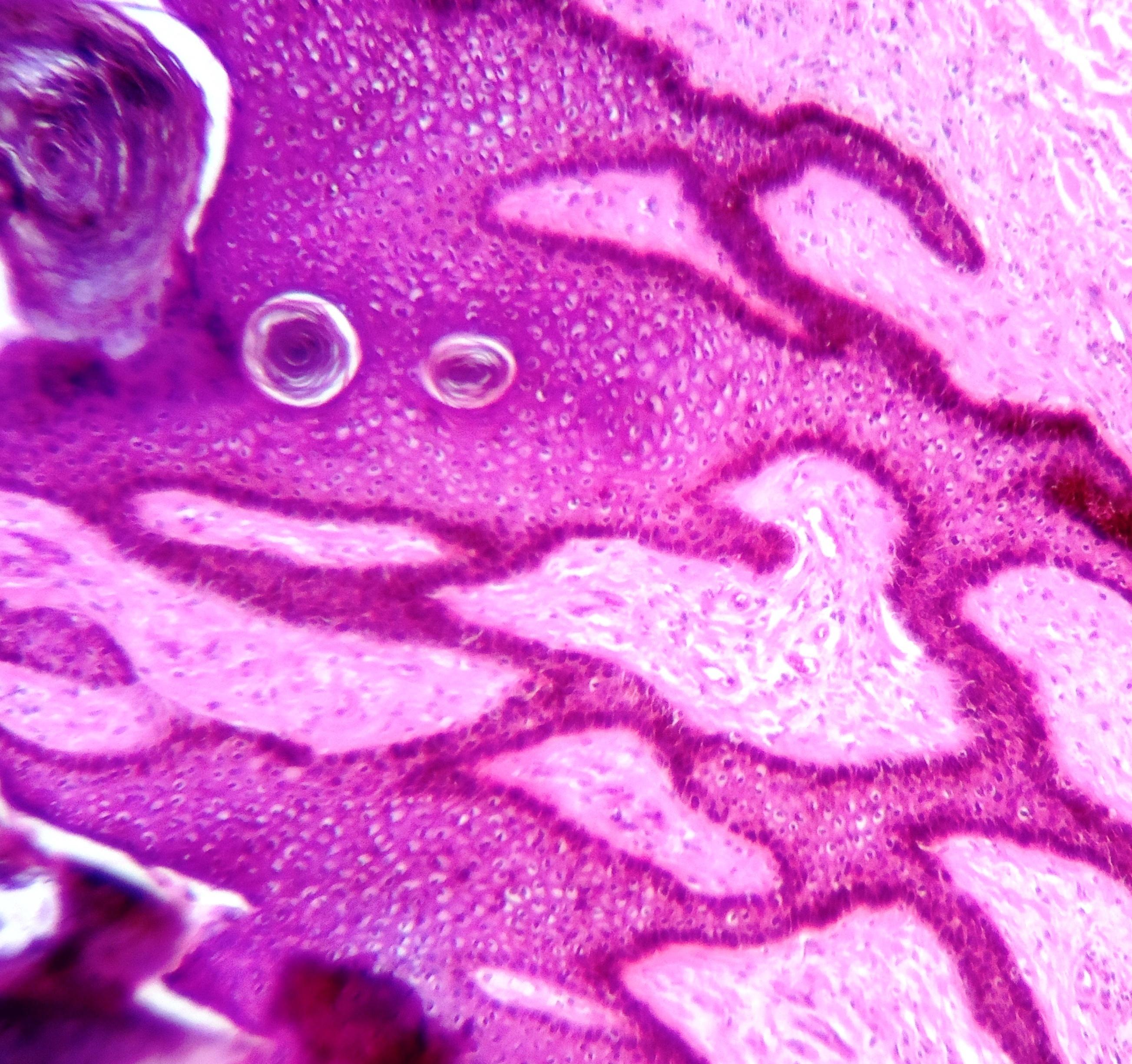condyloma acuminata histology poate elimina alunițele papilomelor