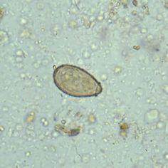 ciclul de viață al fluke și vierme
