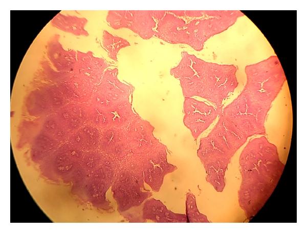 squamous papilloma dysphagia condyloma acuminata hpv type