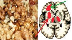sirop paraziti semne de tratament cu giardiaza