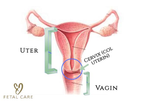 condilom plat al colului uterin ce este