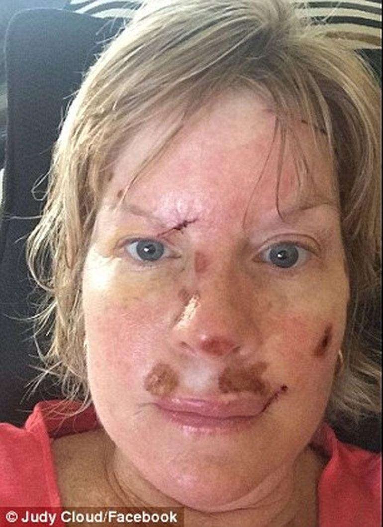 cancer de piele din cauza solarului)