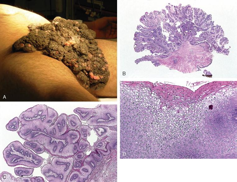 condyloma acuminata causes)