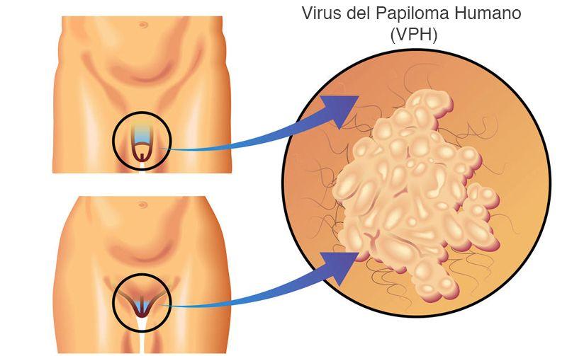 virusul papiloma este tratat