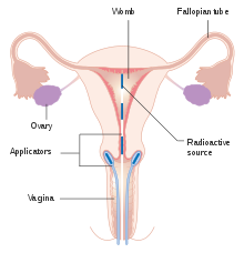 meaning of papilloma in marathi endometrial cancer no bleeding