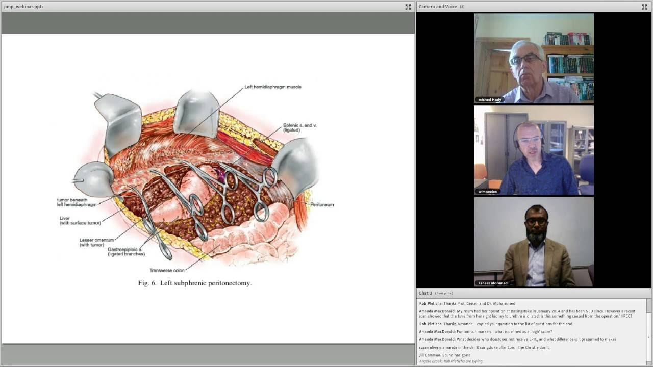 cancer pseudomyxoma peritoneal)