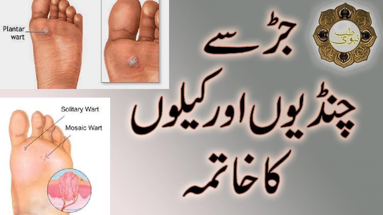 Warts ka treatment in urdu - triplus.ro