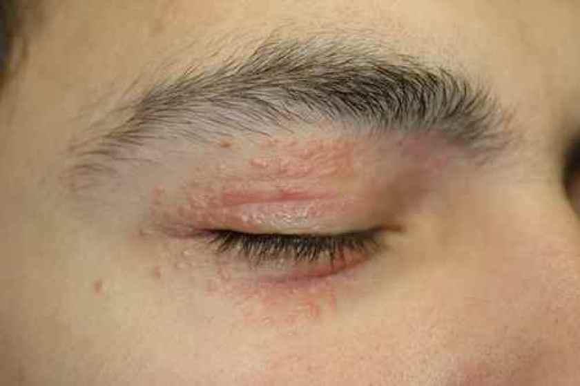 dermatite yeux