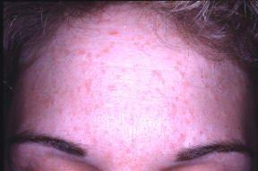 Hpv face symptoms, Hpv skin face
