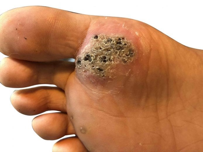 wart on the foot removal)