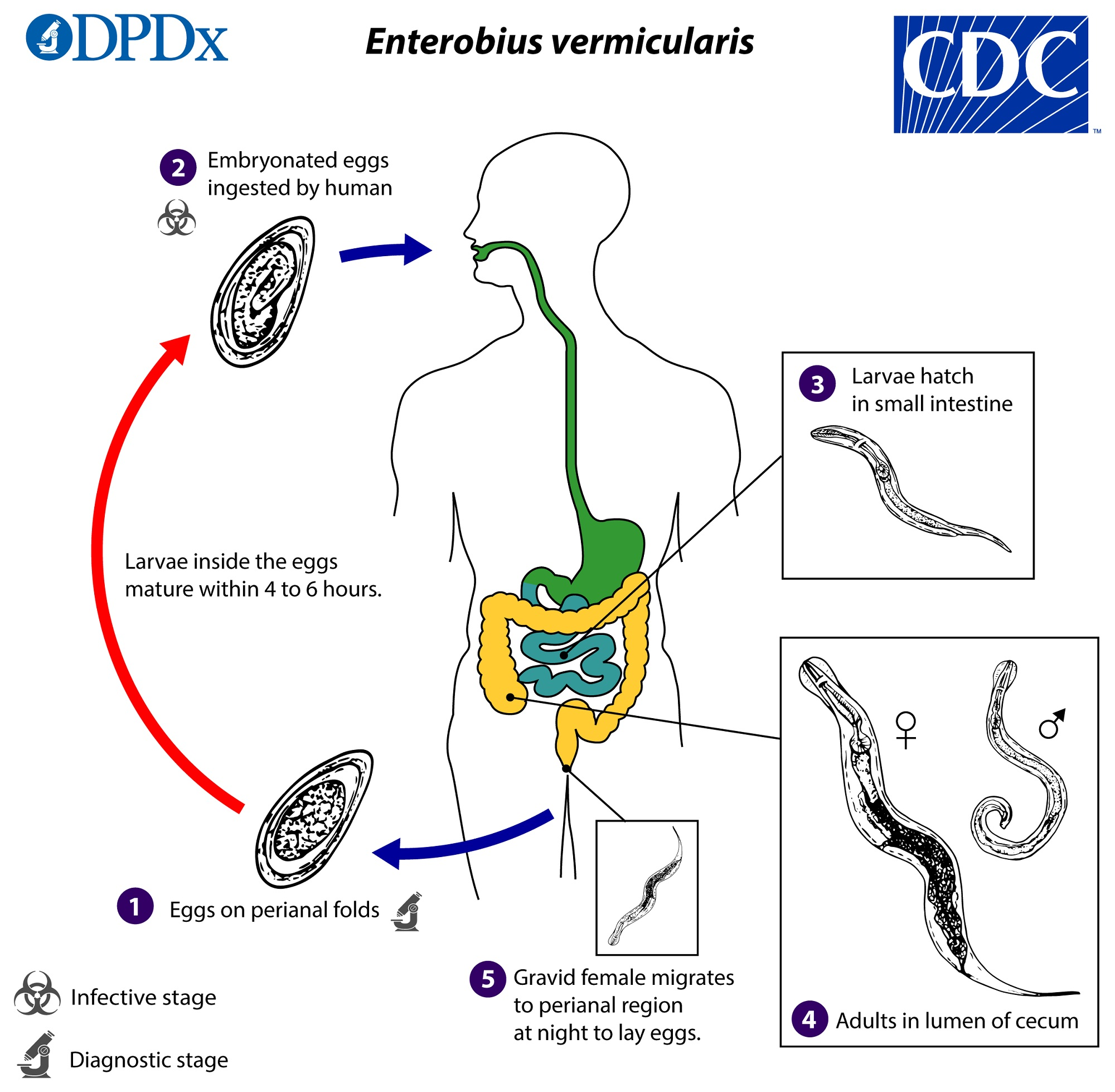 Enterobiasis causes, Enterobius vermicularis infection is acquired by - Detoxifiere cu lamai