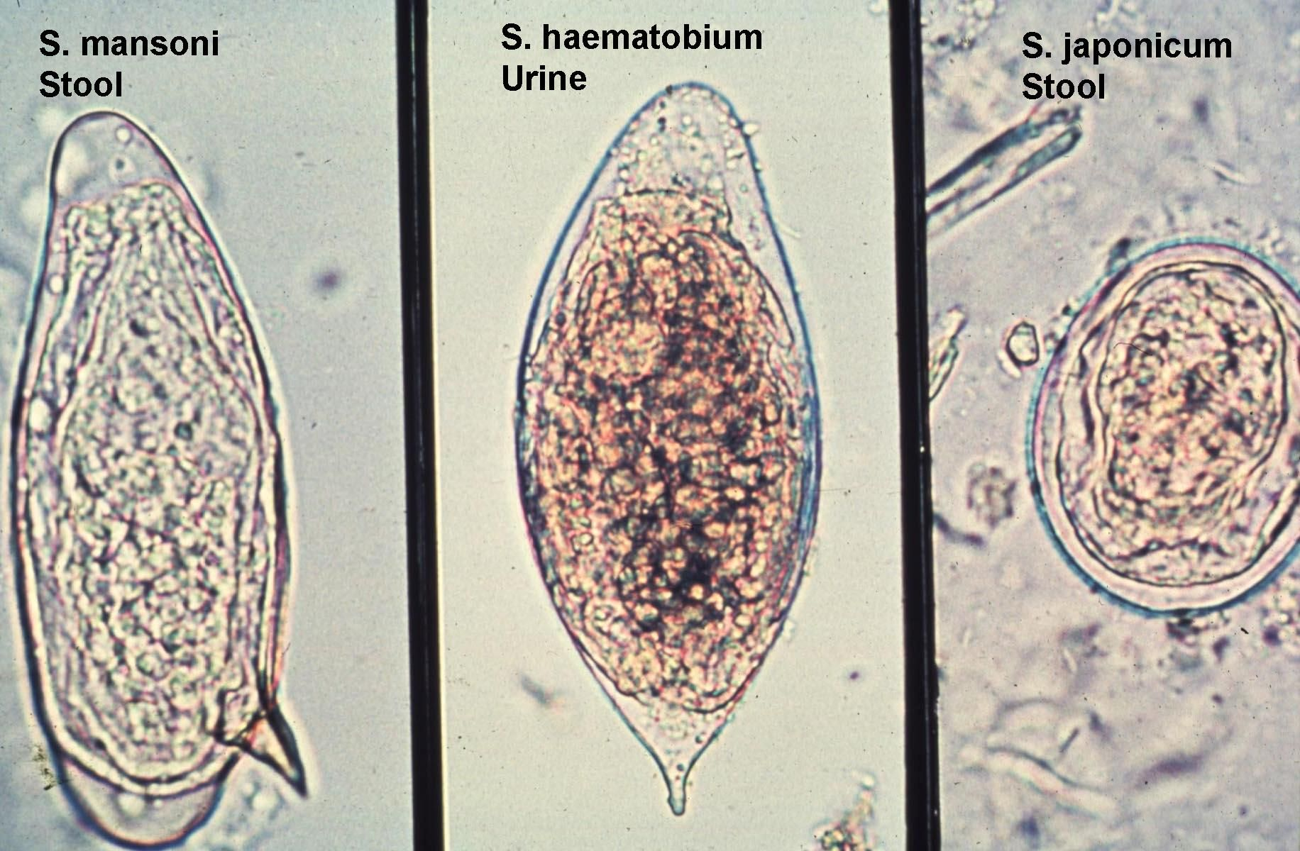 Types of schistosomiasis, Schistosomiasis types Papilloma of whartons duct