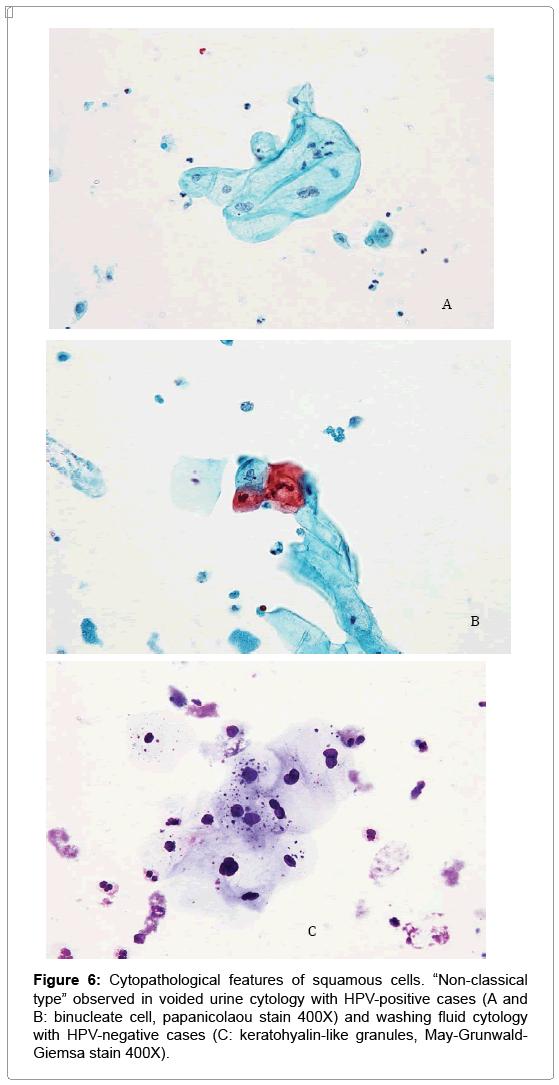 human papillomavirus in bladder