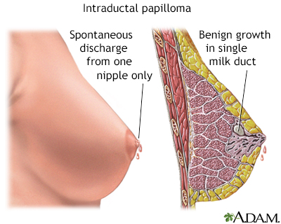 Papillomas bladder tumors. Papillomas bladder tumors