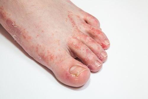 tratamentul micozei degetelor de la picioare