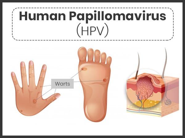 human papillomavirus infection low risk)