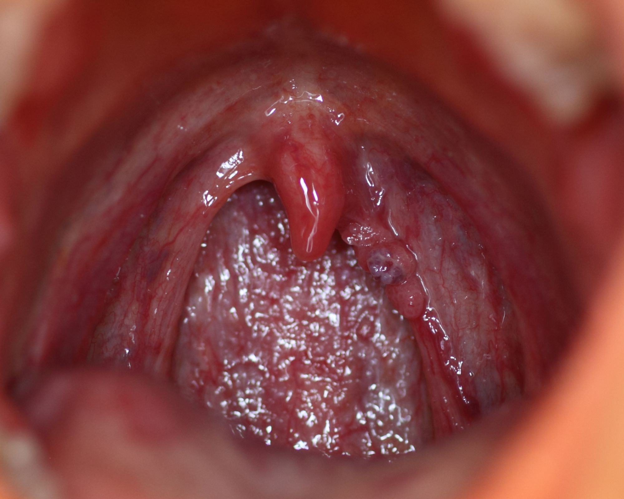 Hpv papilloma in throat. Hpv in throat treatment - triplus.ro