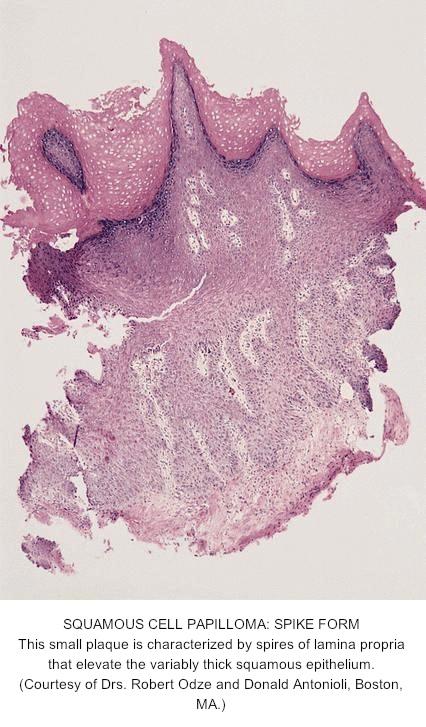 esophageal papillomatosis pathology