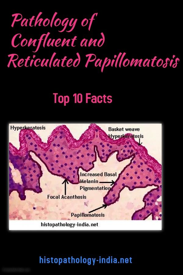 Reticulated papillomatosis pathology - triplus.ro, Reticulated papillomatosis histology