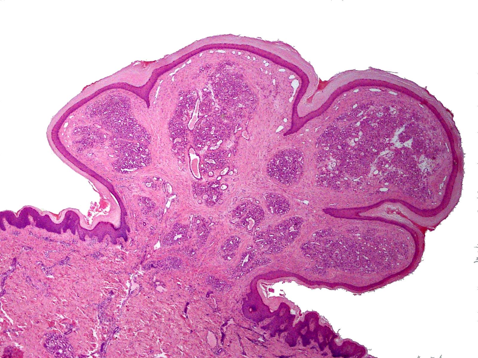 gingival papilloma histology)