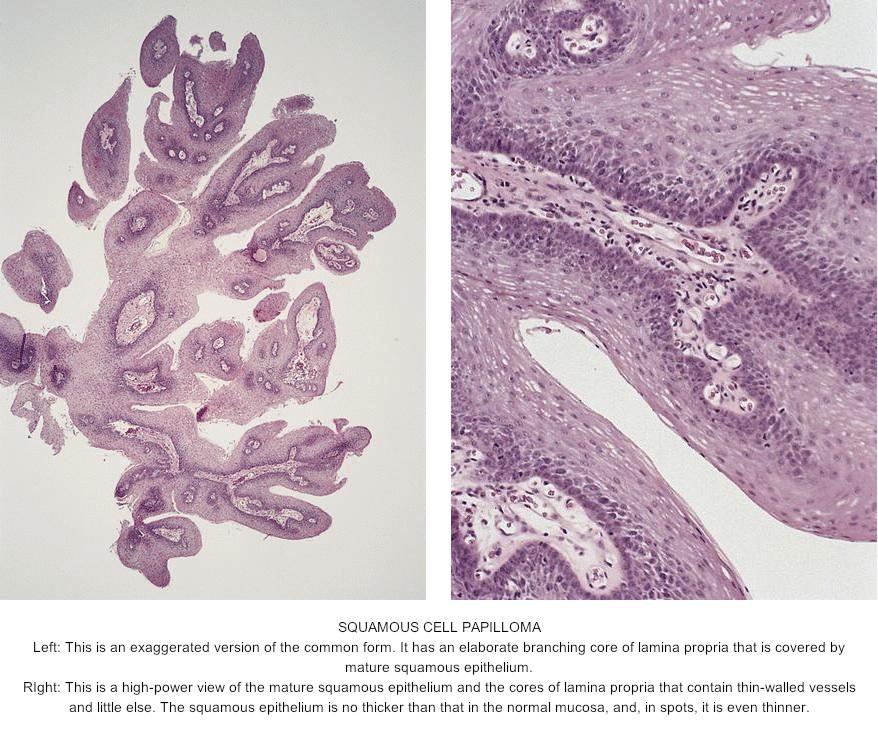 invazie helmintică a durerii gatozaza giardiozei